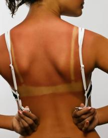 Sun burned lady back